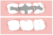 Composite, tooth colored fillings, dentist, cosmetics, implants, orthodontics, lawrenceville, Georgia, 30043