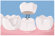 Dental crown, bridges, dentist, cosmetics, implants, orthodontics, lawrenceville, Georgia, 30043