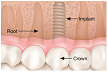Dental implant, dentist, cosmetics, implants, orthodontics, lawrenceville, Georgia, 30043