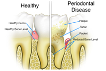 Periodontal, gum, disease, deep cleaning, dentist, cosmetics, implants, orthodontics, lawrenceville, Georgia, 30043